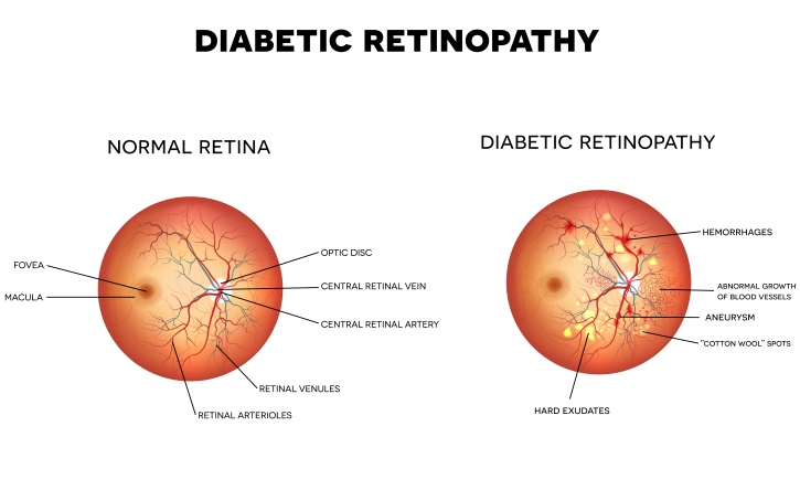 Diabetic retinopathy. The eye condition that affect people with diabetes.