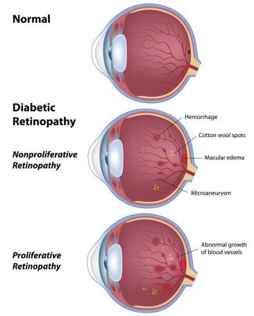 ISNSeye-diabetic-retinopathy_sm